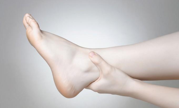 При варикозном расширении вен ноги отекают