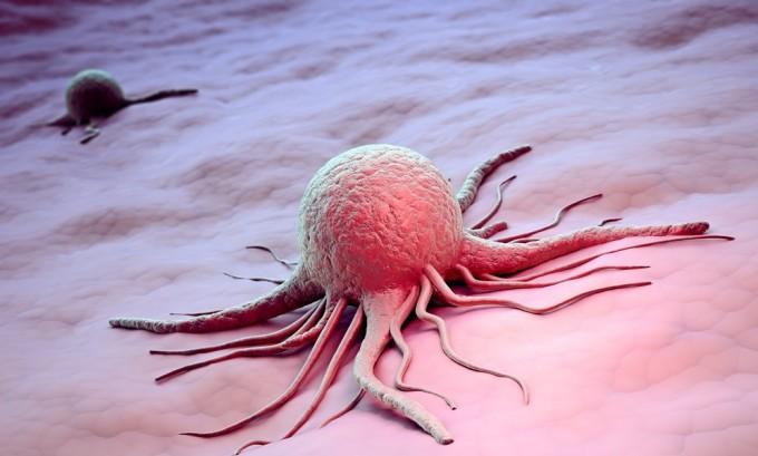 Рецидивирующий без видимой причины герпес может указывать на онкологическое заболевание