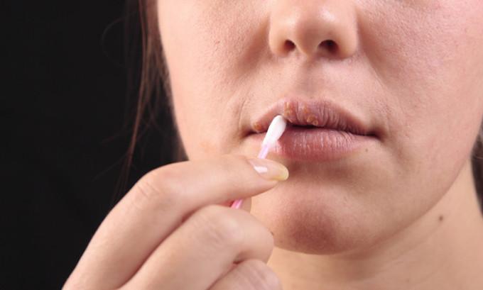 Даже если при простуде заражение герпесом случилось через рот, то не исключено, что рецидивы возникнут простудой не на губах, а, к примеру, на подбородке