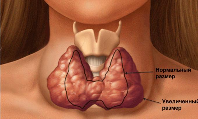 При гипертрофической форме щитовидная железа увеличивается в размерах