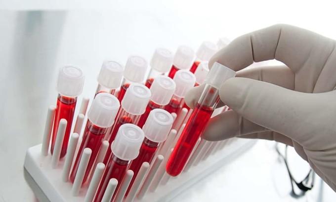 Анализ крови выявляет наличие воспалительного процесса при цистите