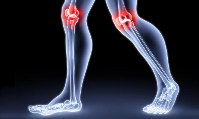 Лимфостаз проявляется болями в суставах