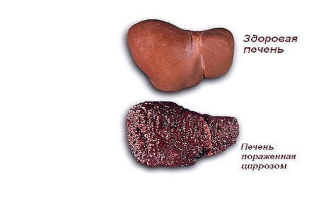 Цирроз печени - причина возникновения варикозного расширения вен пищевода