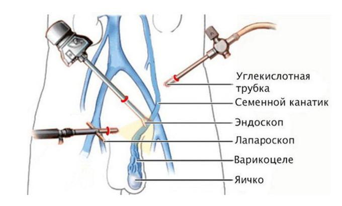 Лапароскопическая операция является довольно щадящим, но эффективным методом лечения варикоцеле