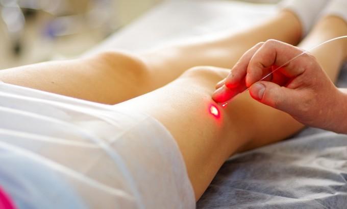 Операция по удалению варикоза может проводиться с помощью лазера