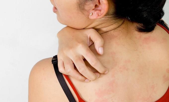 При соприкосновении к пораженному участку на коже возможно инфицирование генитальным герпесом