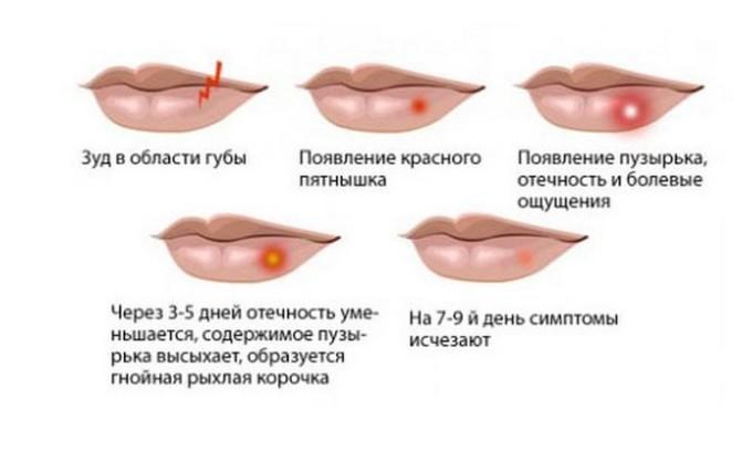 Высыпания на губах имеют несколько стадий развития