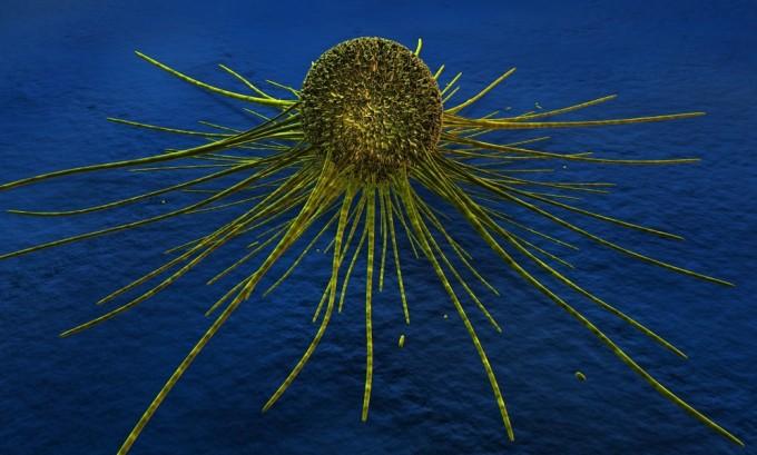 На фоне имеющегося герпеса в организме может начаться развитие злокачественных опухолей