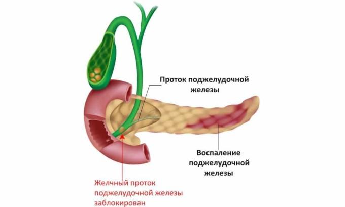 Несвоевременное лечение панкреатита может стать причиной развития панкреонекроза