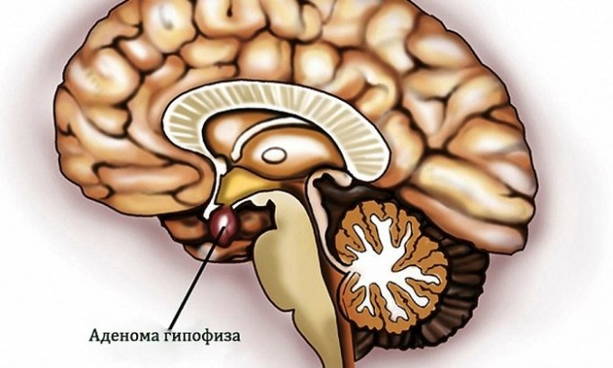 Наличие аденомы гипофиза также является причиной развития недуга