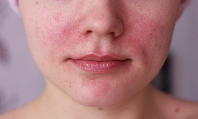 Покраснение лица может свидетельствовать о тиреотоксикозе