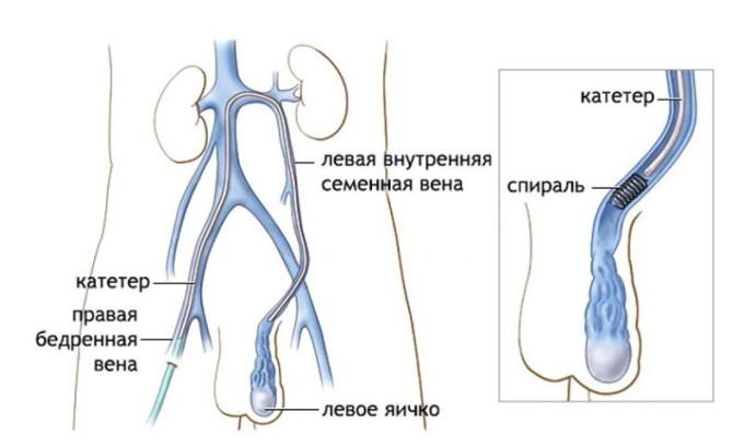 Эмболизация при варикоцеле - щедящий вид оперативного лечения