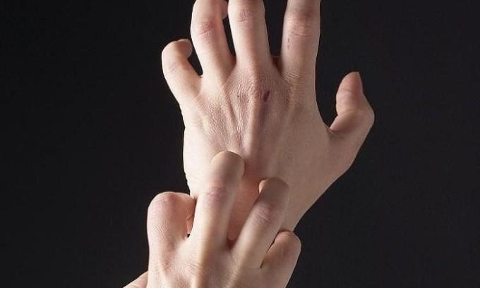 Запрещается расчесывать и тереть и даже трогать герпесные язвочки