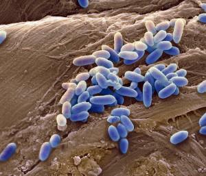 Некоторые бактерии в ходе эволюции стали вырабатывать специфические ферменты бета-лактамазы, которые разрушают структуру антибиотика