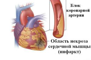 Алкоголь разрушает сердечную мышцу
