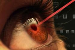 глаз и лазер