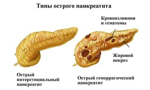 Степень выраженности симптоматических проявлений развития панкреатита напрямую зависит от особенностей поражения поджелудочной железы