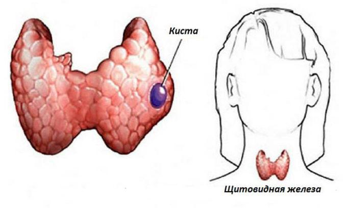 Киста щитовидной железы – это доброкачественное образование железистого эпителия округлой формы, заполненное коллоидным содержимым