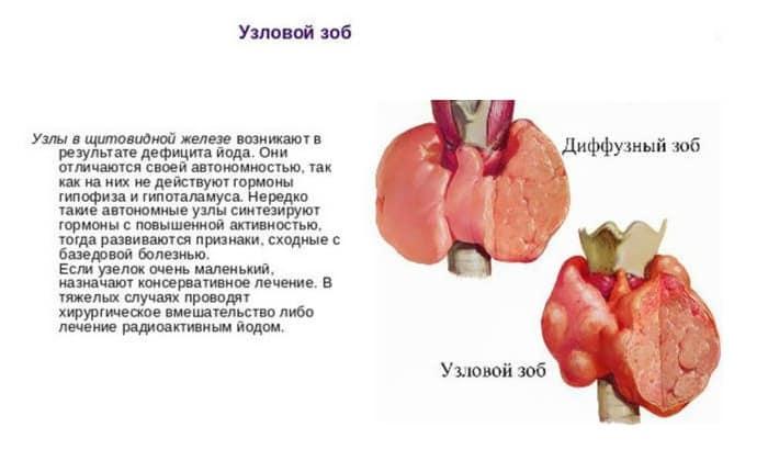 Диета при гипотиреозе - мнение диетолога, советы Pohudetinfo