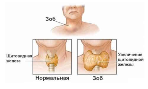 Зоб - это образования, которые развиваются в области щитовидной железы
