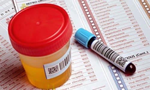 Своевременная сдача анализа на ее гормоны позволяет вовремя диагностировать заболевание и предпринять соответствующие меры