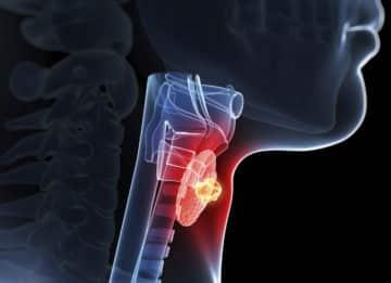 Как помогает в лечении радиоактивный йод?