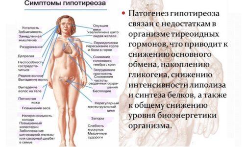 Гипотиреоз - это функциональное нарушение в работе щитовидной железы, обусловленное длительным недостатком выработки ее гормонов