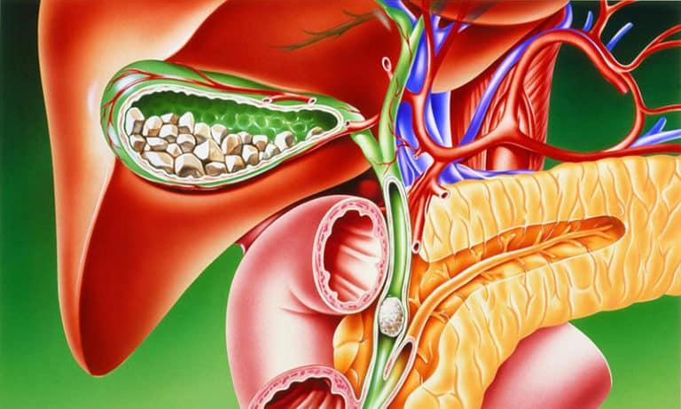 Диета для больных желочнокаменной