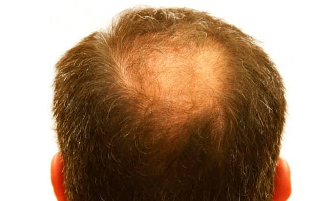 Выпадение волос при гипотиреозе считается одним из признаков отклонений в работе организм