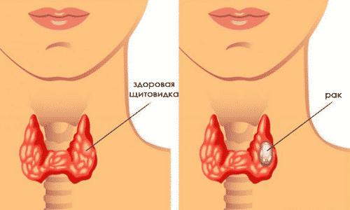 Онкологическая опухоль устанавливается по выявленным отражениям сигнала на УЗИ