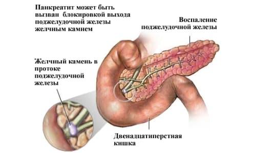 Камень в протоке - возможная причина панкреатита