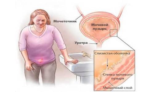 Цистит, представляет воспалительный процесс слизистых мочевого пузыря, что приводит к его дисфункции