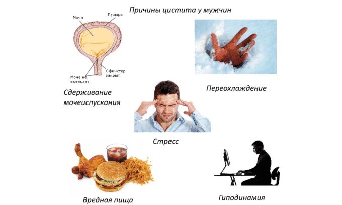У мужчин цистит в острой форме может возникнуть на фоне воспаления предстательной железы, орхоэпидидимита и воспаления уретры
