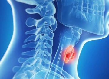 Щитовидная железа: причины и симптомы заболевания у женщин