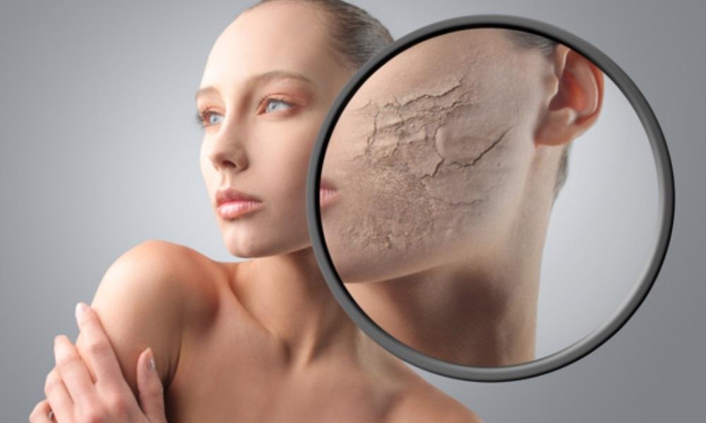 нарушение обмена веществ кожные проявления