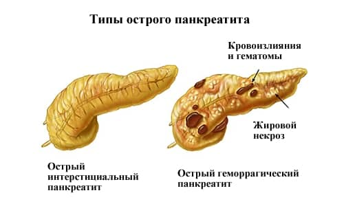 Симптомы панкреатита в первую очередь зависят от его типа и степени тяжести