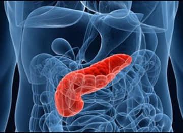 Понятие гиперфункции поджелудочной железы