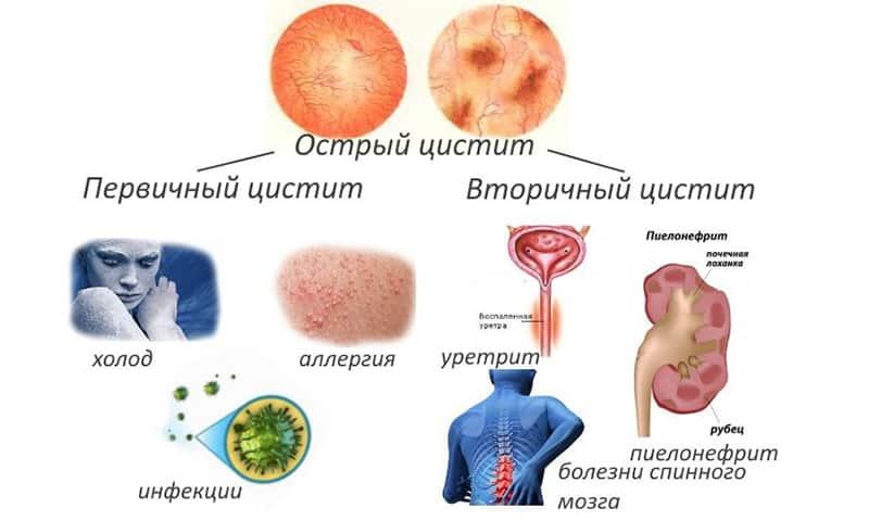 Острый хронический цистит лечение