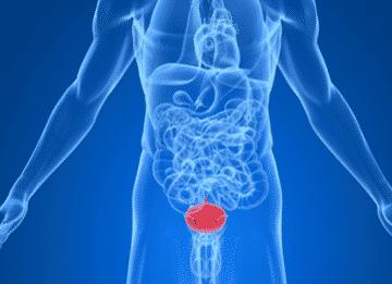 Воспаление мочевого пузыря: симптомы