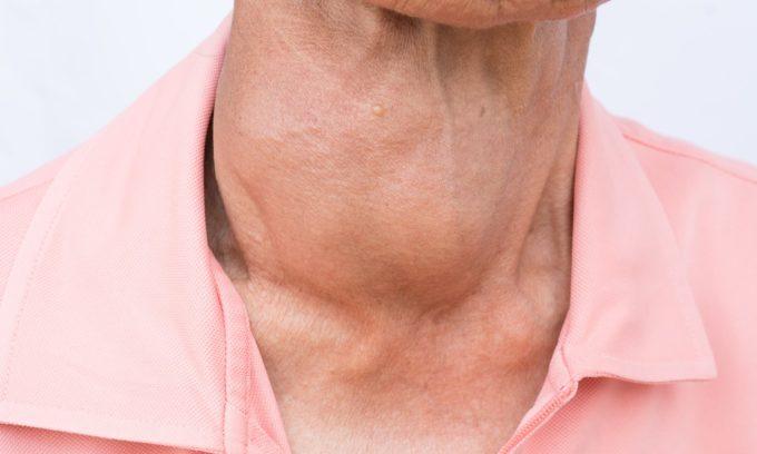 Узловым зобом называют группу заболеваний, при которых в железе развиваются объемные образования в виде узлов