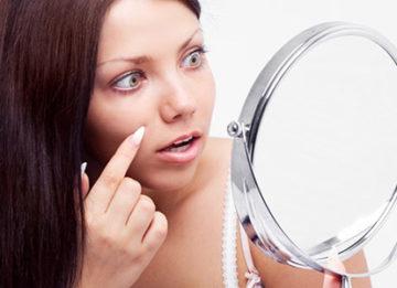 Способы лечения купероза на лице народными средствами