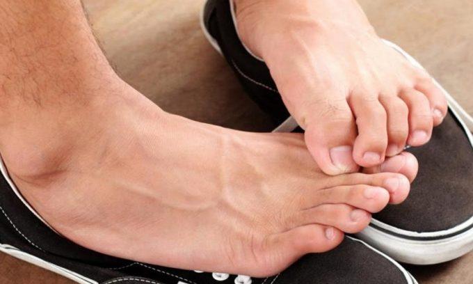 Повышенная потливость ног является одной из причин развития онихокриптоза