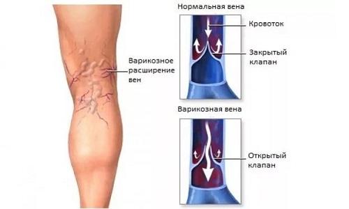 Нарушение циркуляции крови в сосудах влечет за собой огромную нагрузку на сердце и может служить развитием тромбоза
