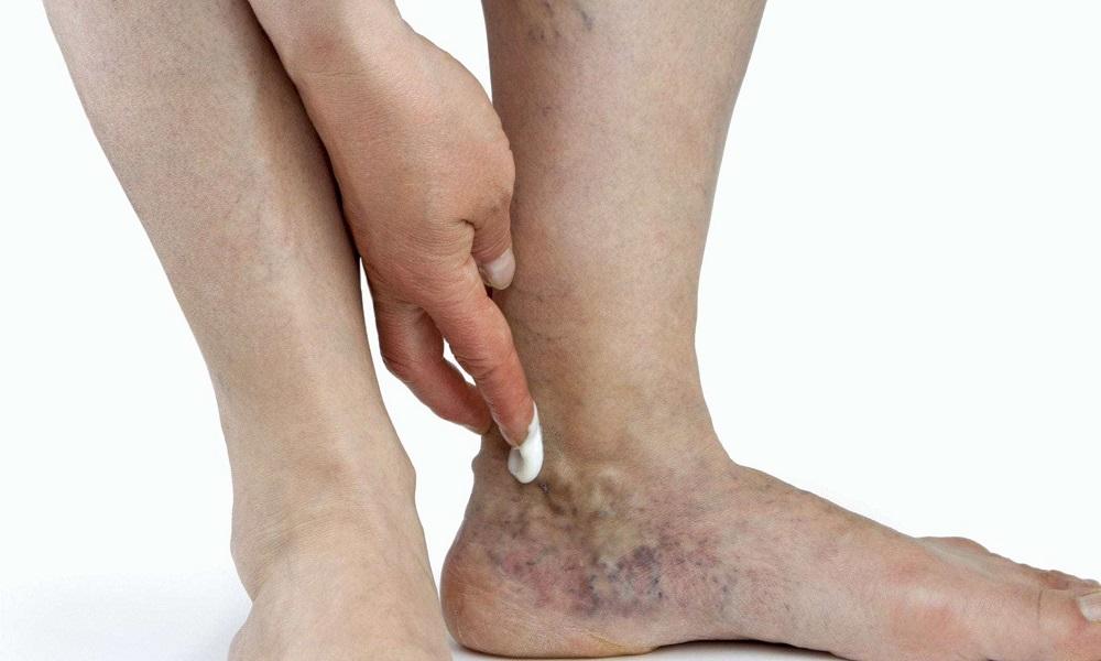 Лечение варикоза вен на ногах видео