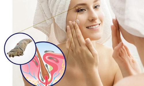 Розацеа часто сопровождается появлением другого кожного заболевания - демодекоза