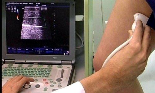 Для определения диагноза используют дуплексное сканирование