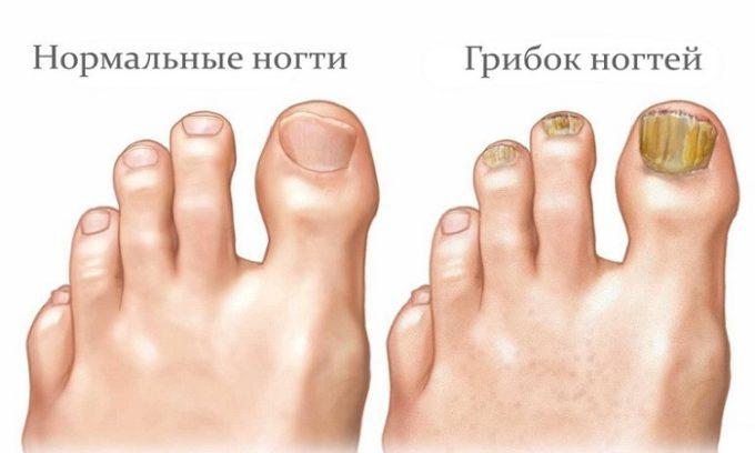 Иногда причиной поражения ногтей являются грибковые заболевания