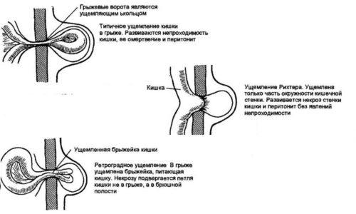 Размер грыжевого мешка и симптомы, которые тревожат беременную женщину, полностью зависят от того, выпадением каких именно внутренних органов была спровоцирована пупочная грыжа