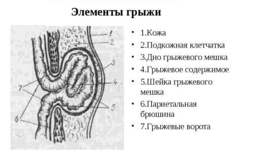 Пупочная грыжа является распространенным заболеванием у беременных женщин. Провоцирует его развитие значительное ослабление мышц, расположенных в районе пупочного кольца