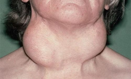 Гипотиреоз (зоб Хашимото): выделяется изменение структуры дегенеративного характера, появление участков соединительной или фиброзной ткани
